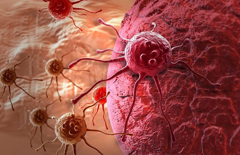 рак полового члена у мужчин