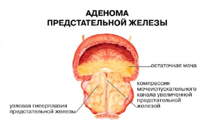 ДГПЖ показание к рименению сонизина