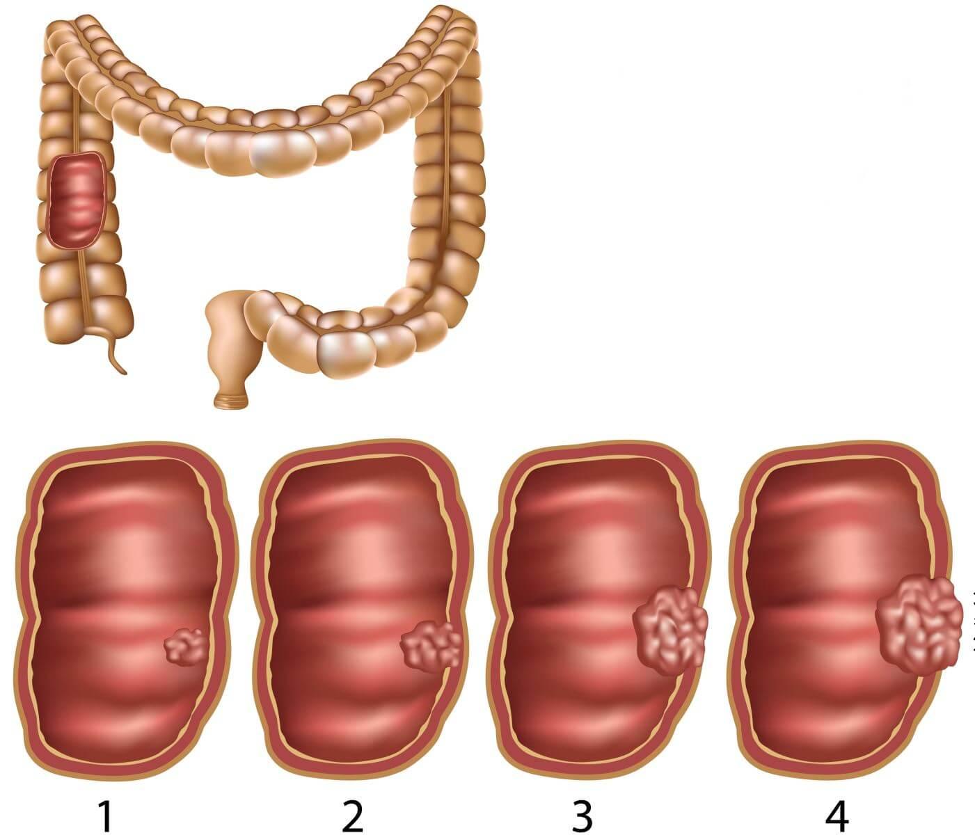 рак кишечника классификация по стадиям