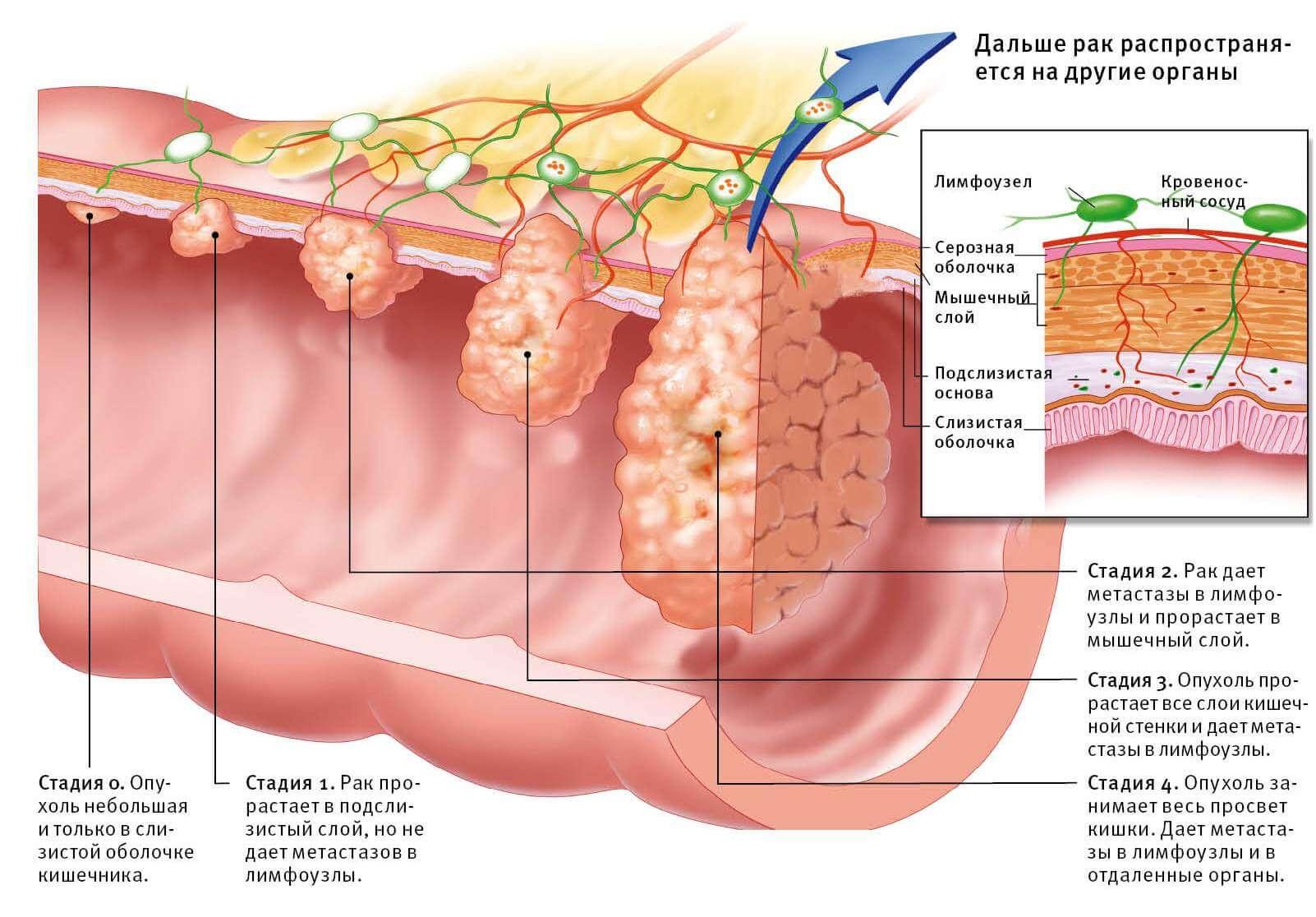 симптомы и стадии рака толстого кишечника