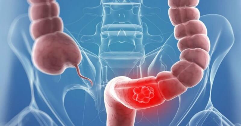 Рак толстой кишки, симптомы на ранней стадии
