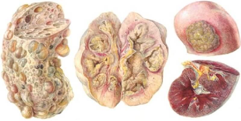 признаки туберкулеза почек на разных стадиях