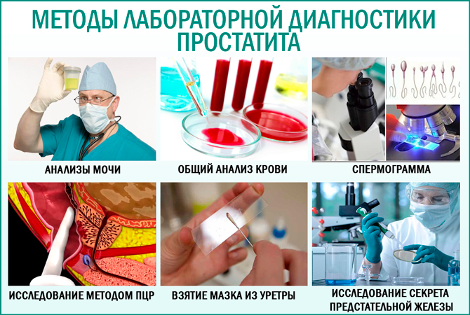 Простатит диагностика методы лечения препараты для лечение калькулезного простатита