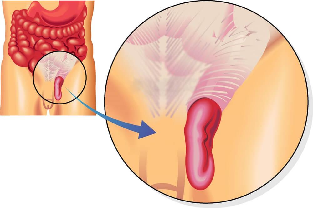Симптомы и методы лечения паховой грыжи у мужчин
