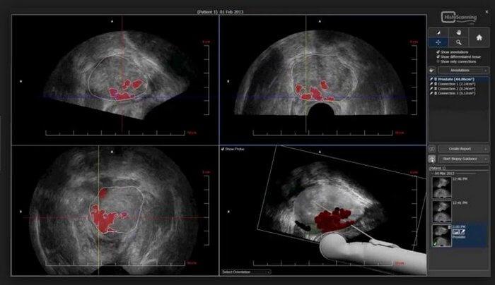 Диагностика рака 4 стадии