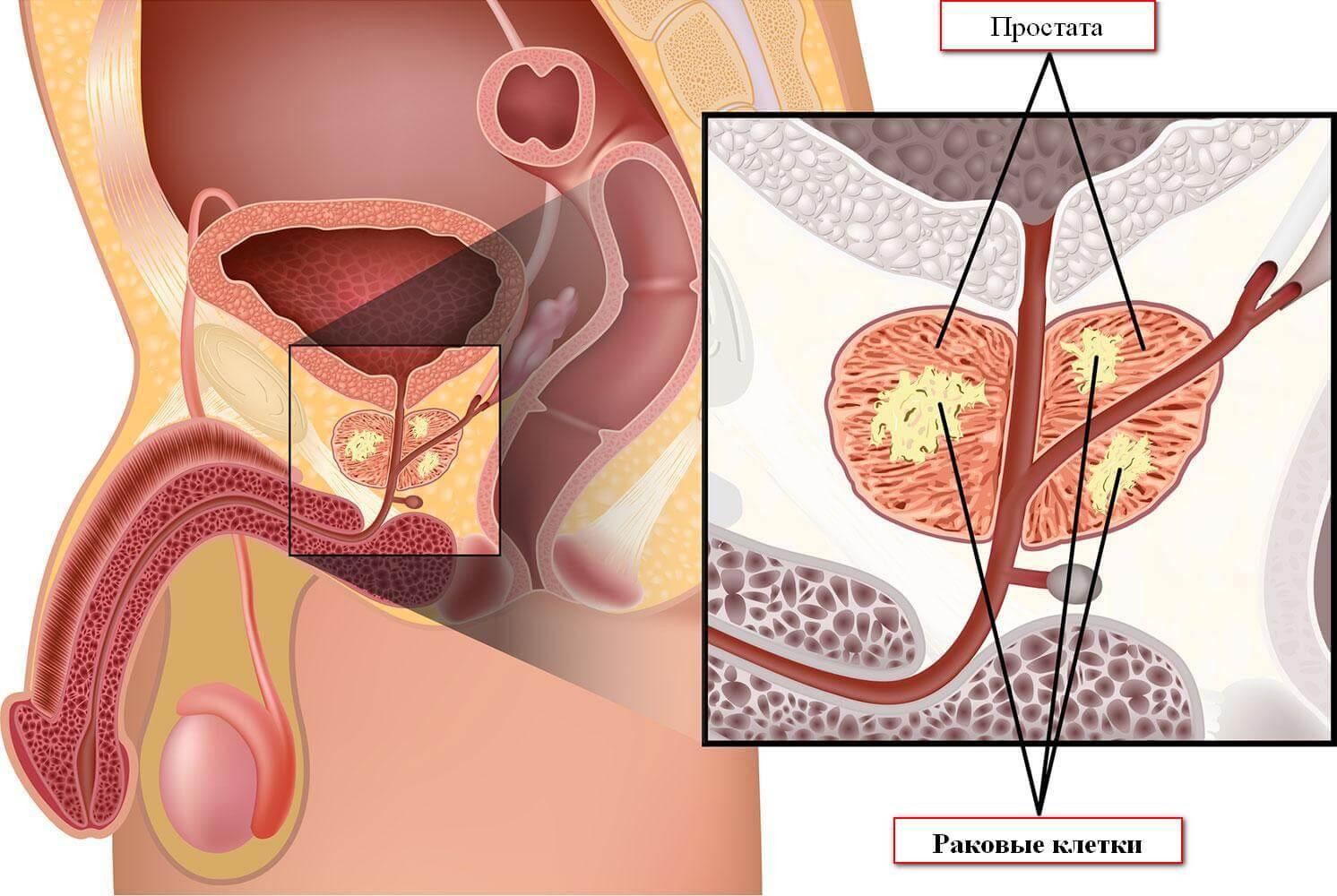 Расположение раковых клеток при раке предстательной железы