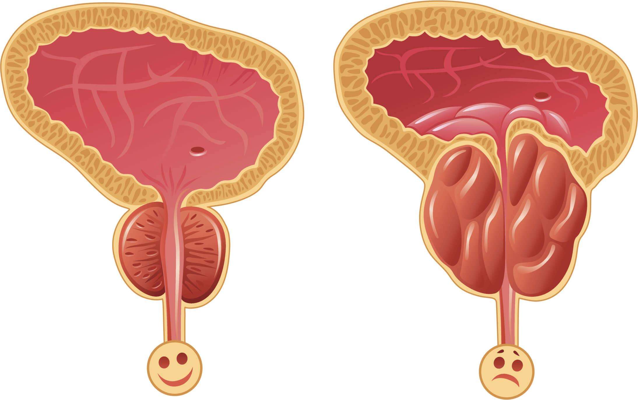 рак простаты при повышении дигидротестостерона