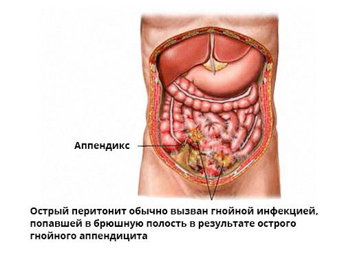 peritonit