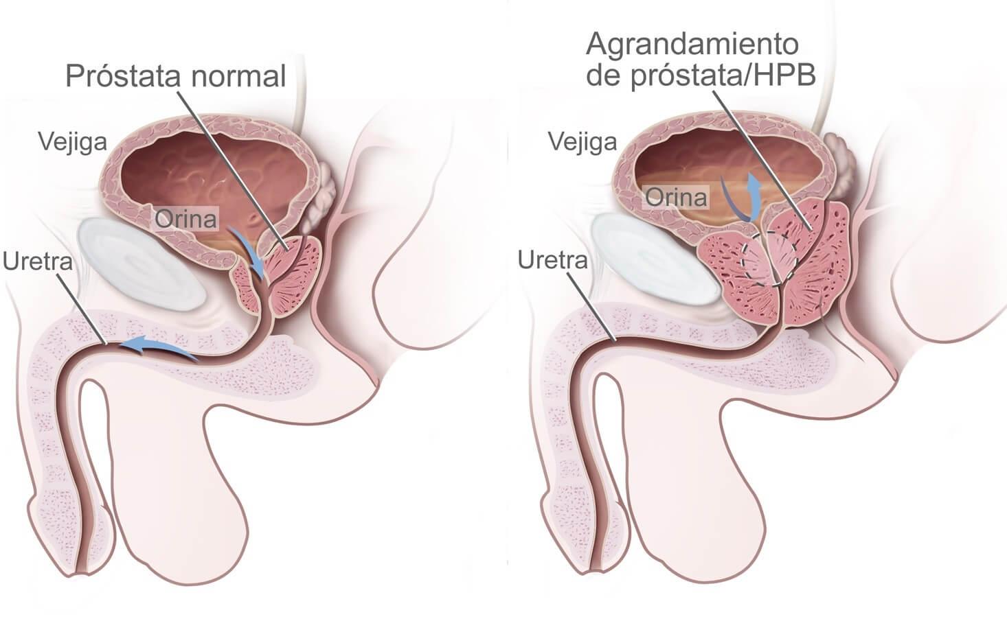 Механизм воспаления предстательной железы