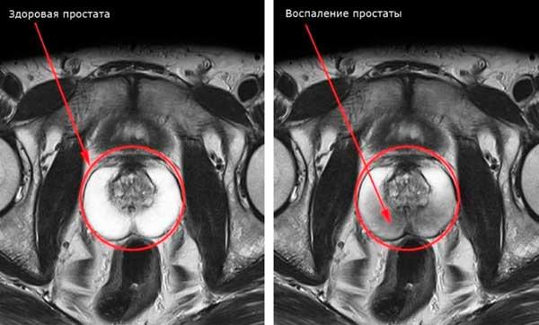 томография простаты