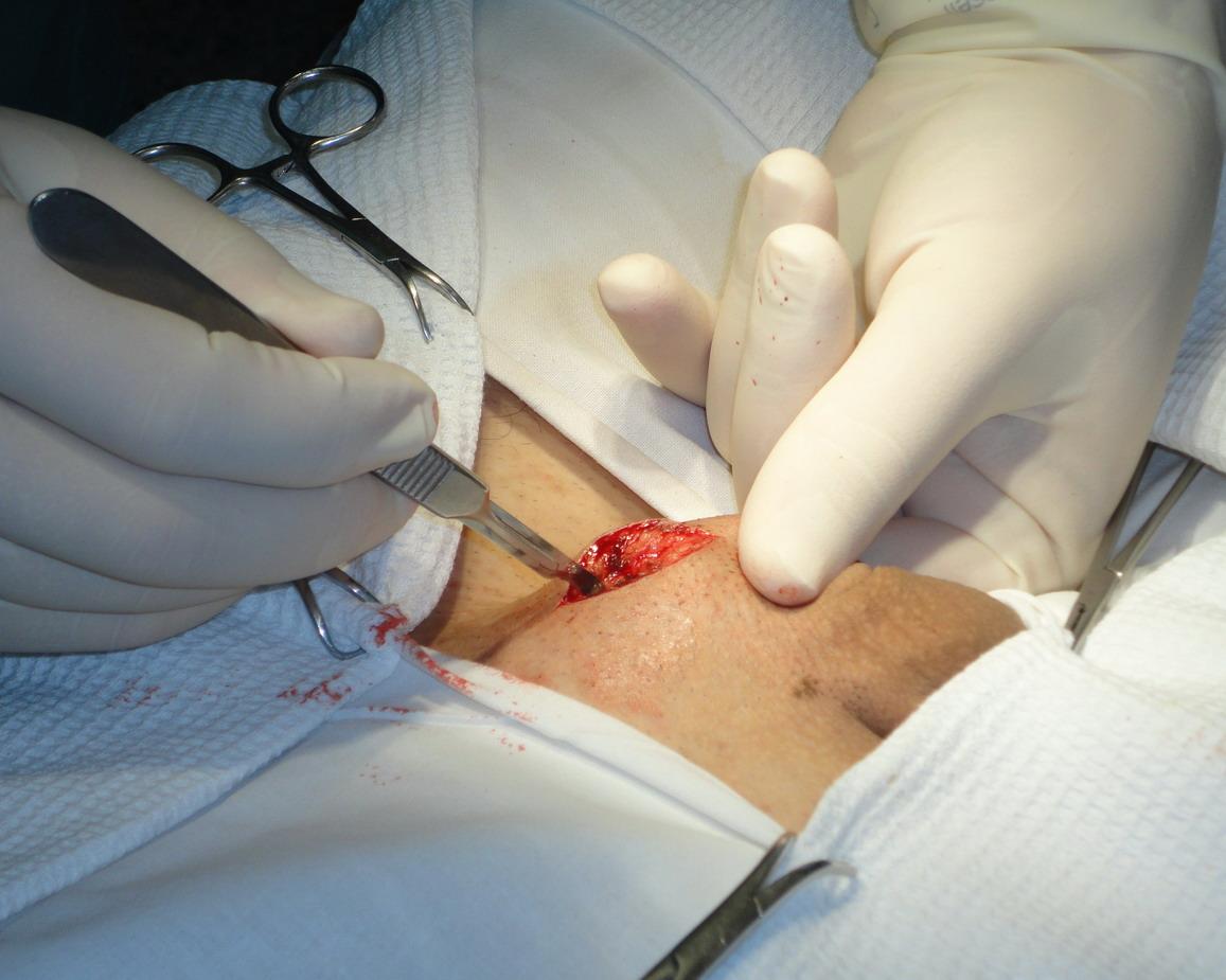 как проходит восстановление мужчины после операции варикоцеле