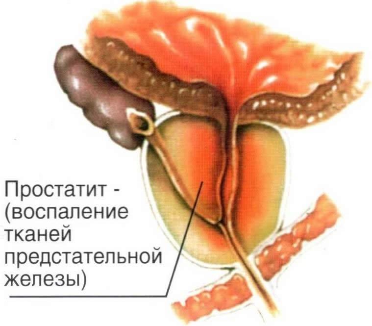 гиперплазия простаты причины