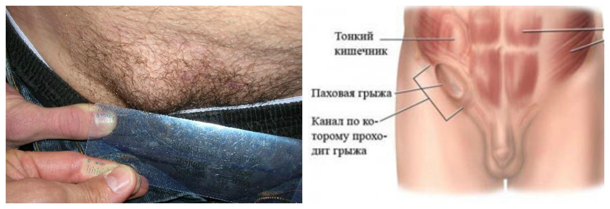 основной признак паховой грыжи у мужчин