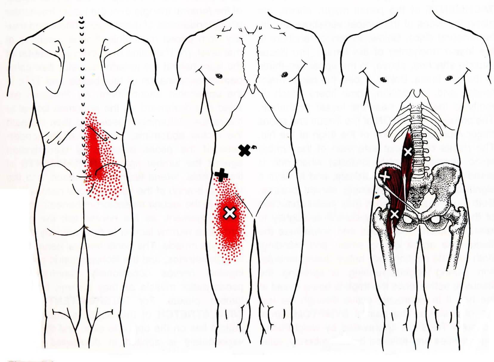 Локализация боли в области таза