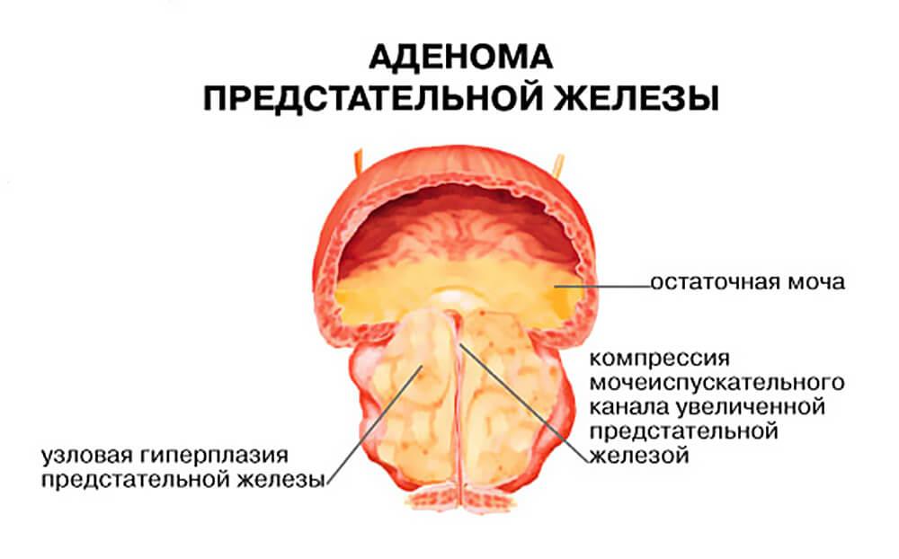 аденома простаты и рак