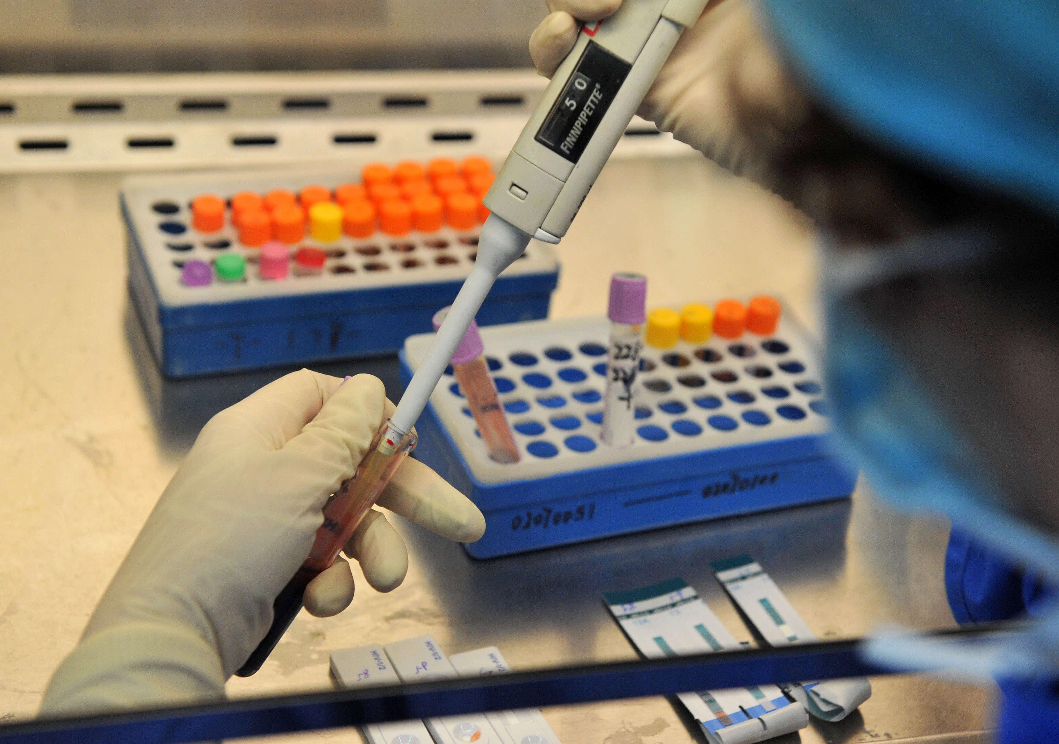 Что нужно для анализа крови на ПСА