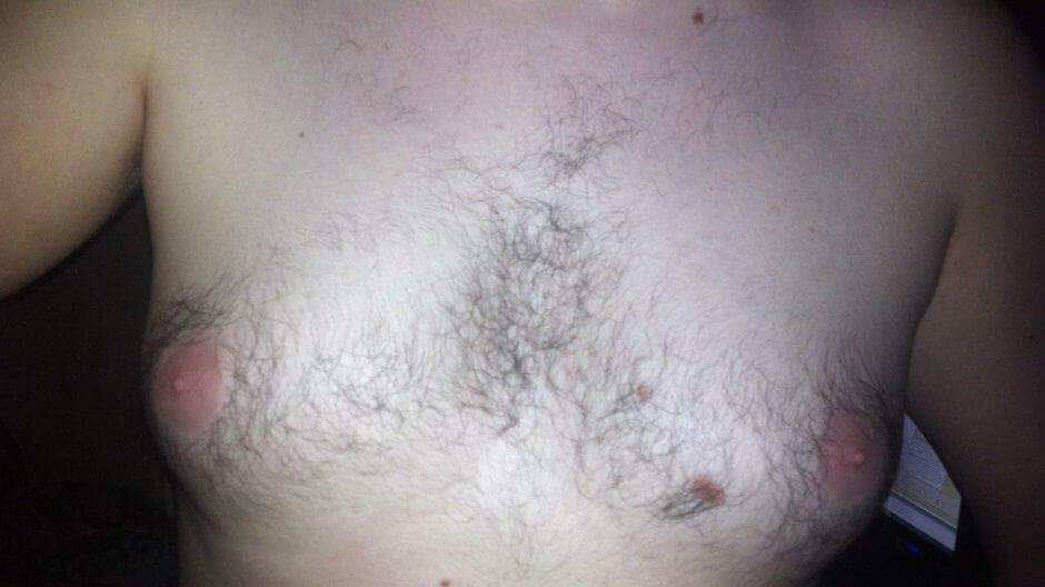 виды гинекомастии у мужчин