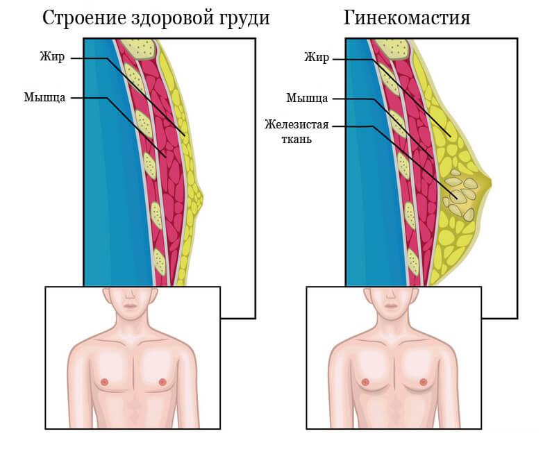 как проявляется гинекомастия
