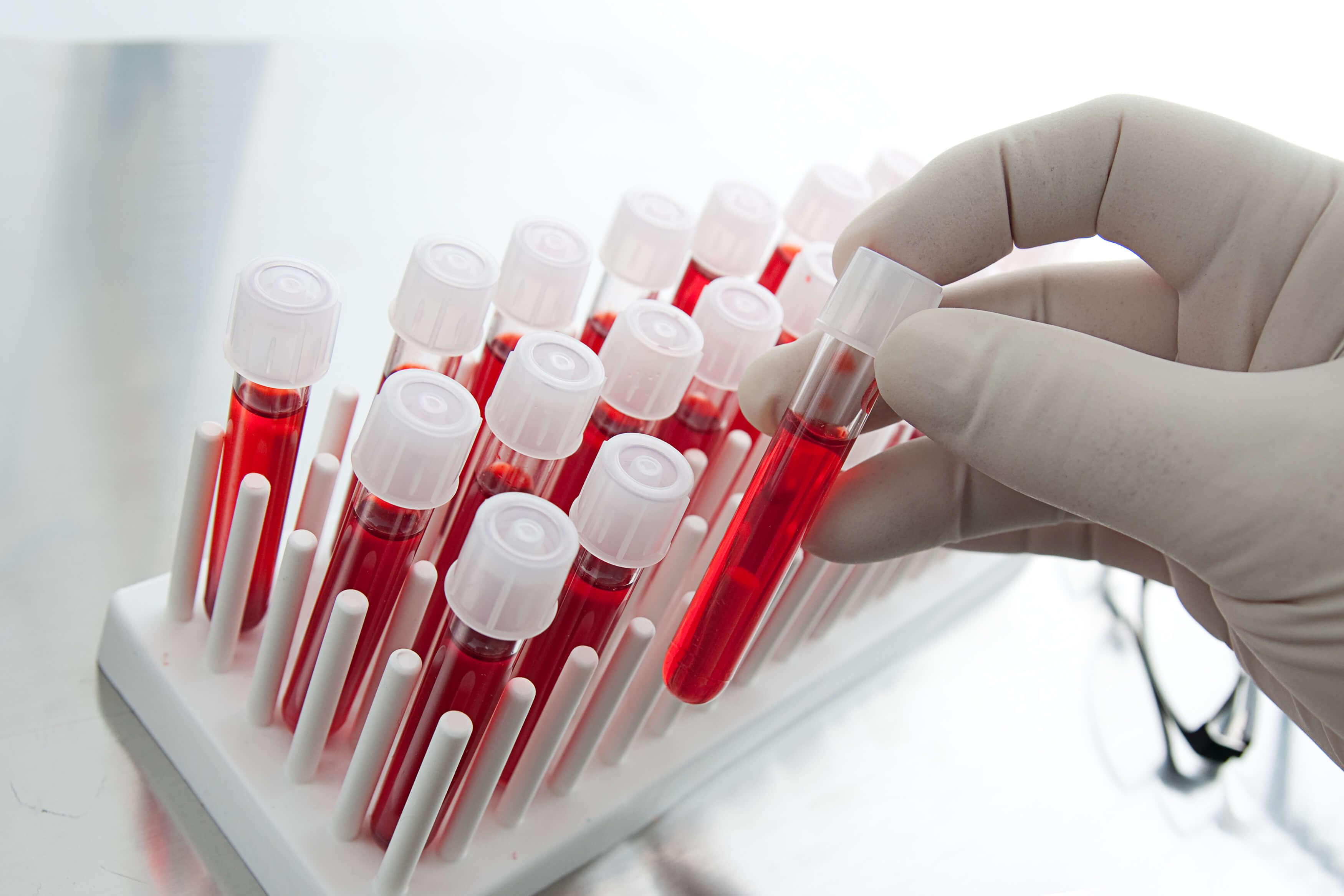 определение рака простаты по анализу крови