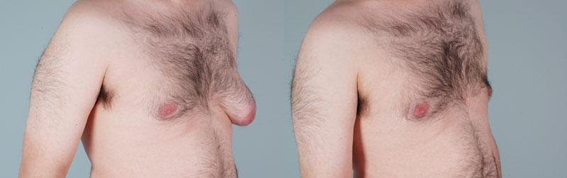 как определить гинекомастию