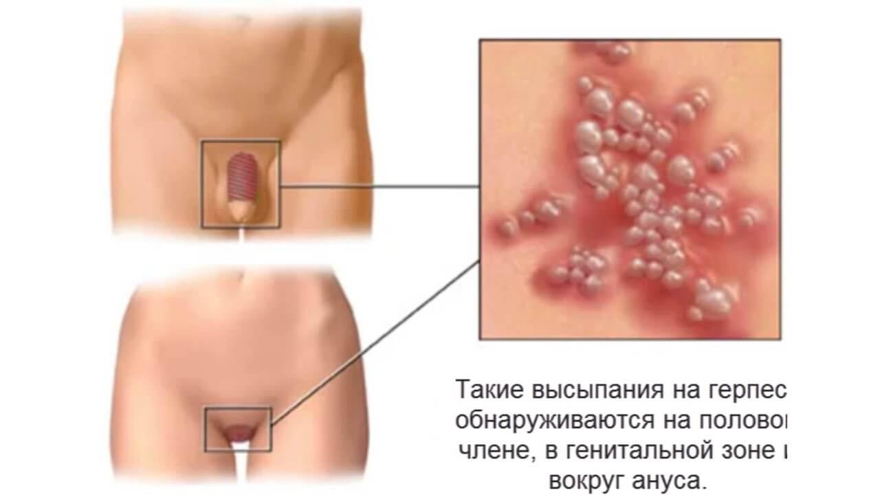 покраснение кожи полового члена при генитальном герпесе