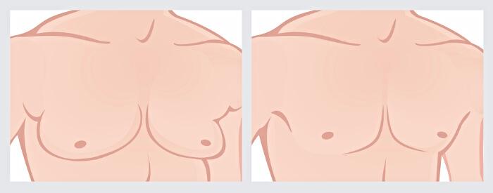 как выявить гинекомастию истиную