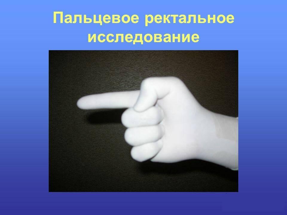Пальцевое исследование прямой кишки и предстательной железы