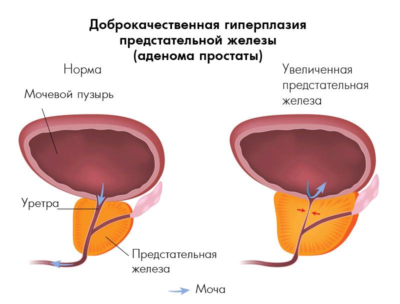 Аденома предстательной железы лечение народными средствами