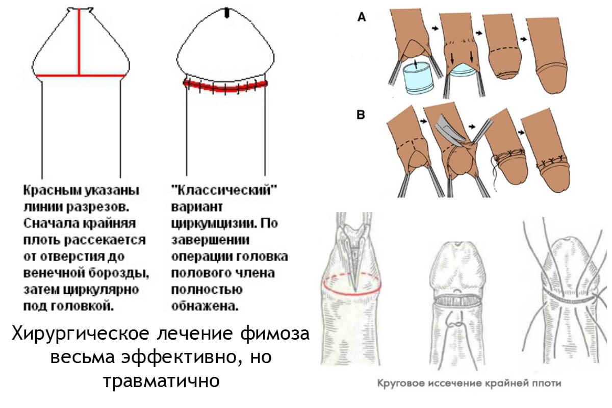 обрезание у мужчин при лечении фимоза