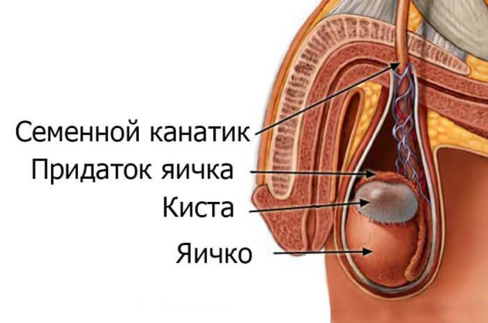 какие симптомы водянки яичка у мужчин