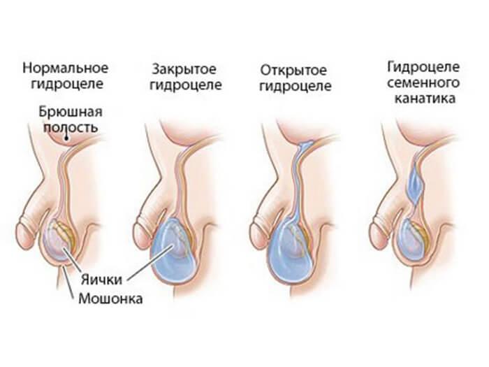 водянка яичка у мужчин