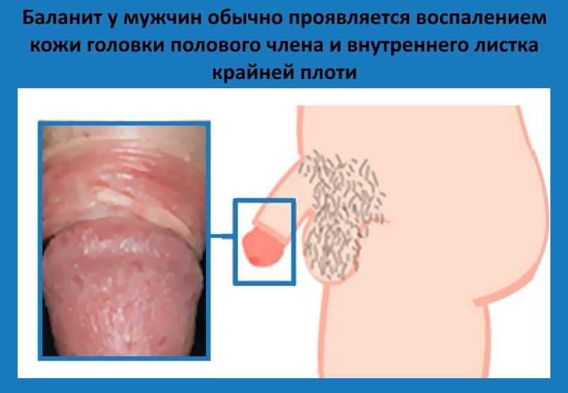 Красные пятна на головке полового члена у мужчин возможные причины появления и методы лечения
