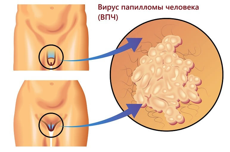 бородавки на половых органах как выглядят