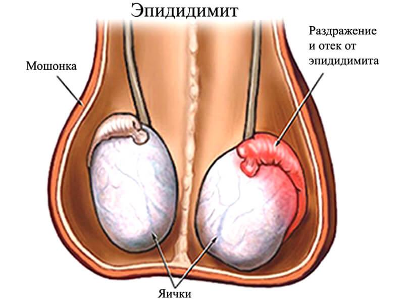 эпидимит вызывает боли в яичках