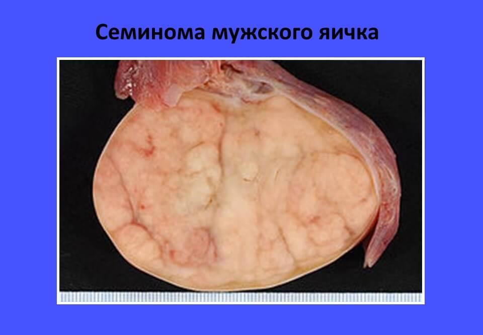 семинома вызывает уплотнение яичка у мужчин