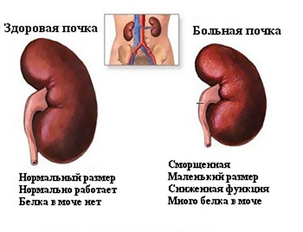 почему бывает кровь в моче у мужчин