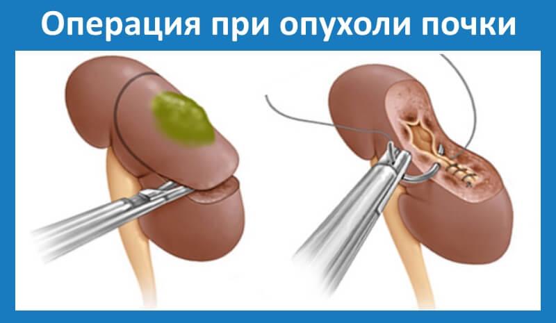 как проводится лечение при доброкачественной опухоли почки