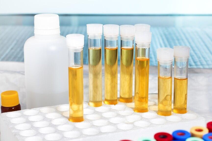 как определить хронический бактериальный простатит у мужчины
