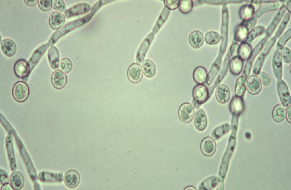 грибок половго члена под микроскопом
