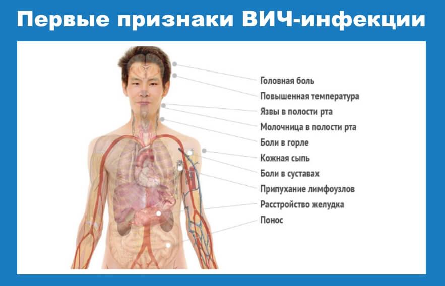 первые признаки вич-инфекции у мужчин