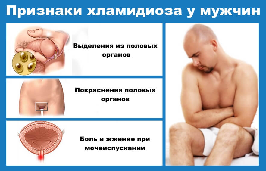 первые симптомы венерических болезней у мужчин