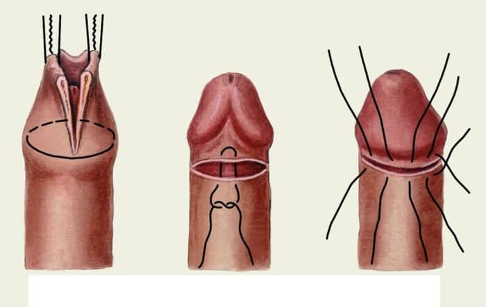 Опухлокожа на головке пениса