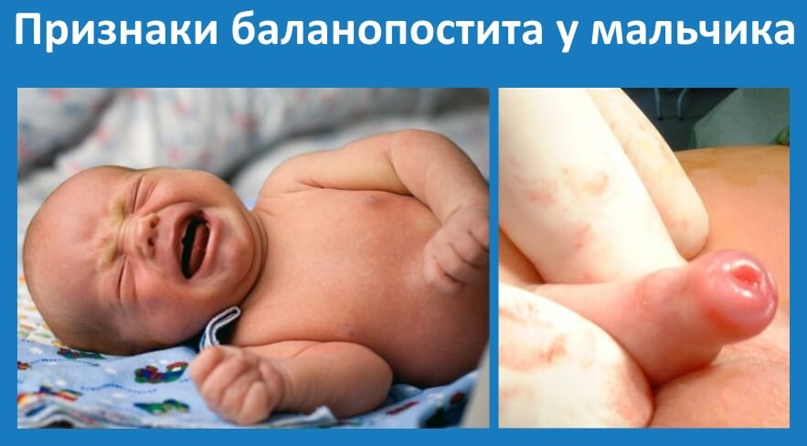 симптомы баланопостита у мальчика