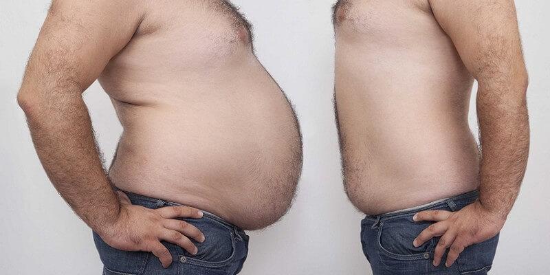 Ожирение 1 и 3 степени у мужчин