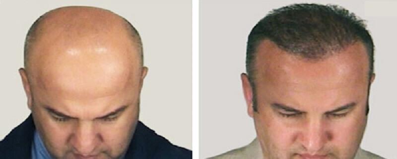 трансплантация волос при облысении у мужчин