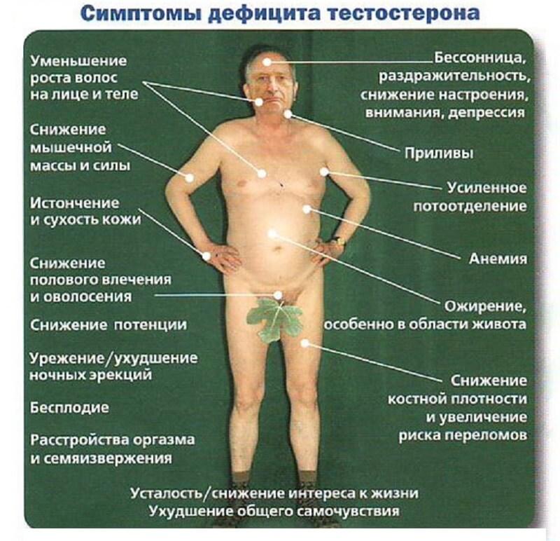 гипогонадизм фото и симптомы