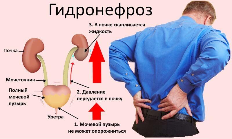 причины и признаки гидронефроза почки