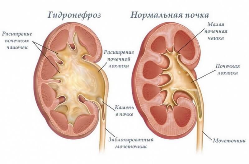 гидронефроз левой почки
