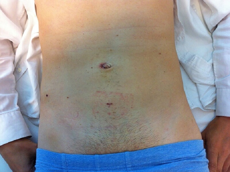 реабилитация мужчины после удаления паховой грыжи