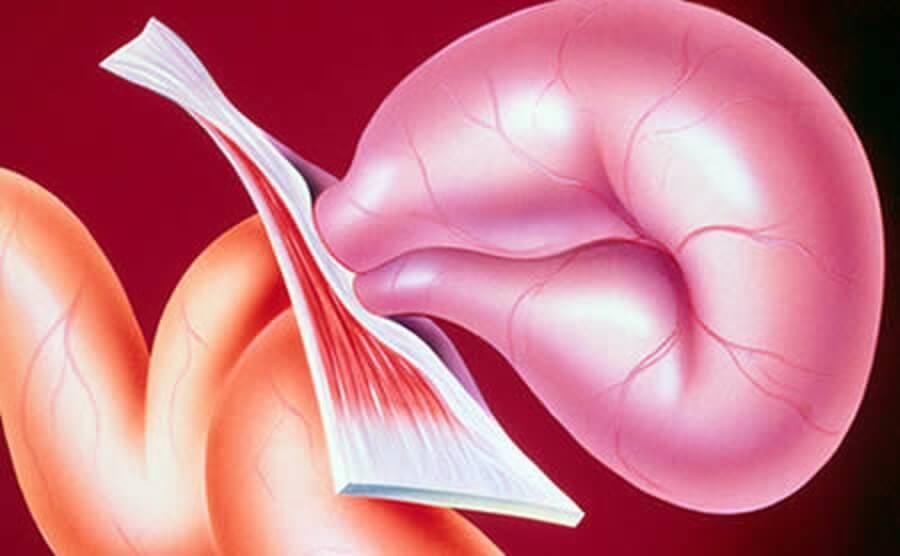 Паховая мошоночная грыжа у мужчин лечение без операции: лекарства, первые признаки, польза, причины